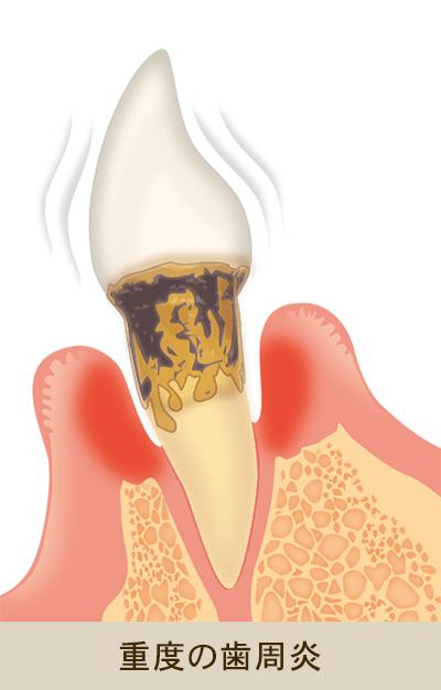 重度の歯周炎